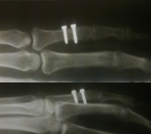 phalange fracture, synthes with screws