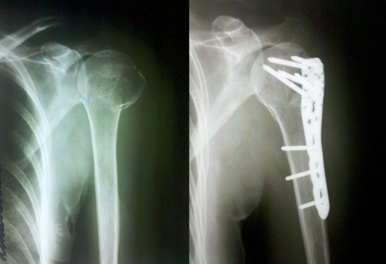 operative treatment shoulder fracture, Philos system